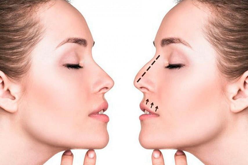 Ринопластика: скажите «нет» дефектам носа и попрощайтесь с ними навсегда